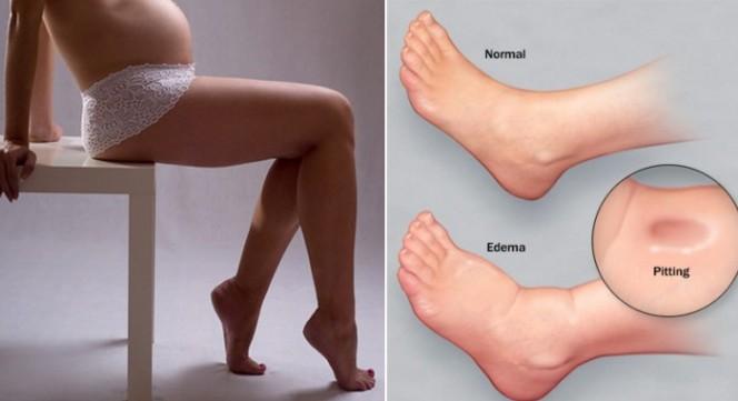 Едема – подуване на крайниците през бременността