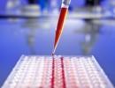ДНК-тестове откриват деца, родени при кръвосмешение